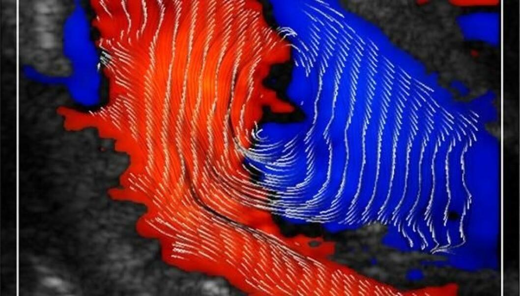 Blodstrømmene i hjertet kommer tydelig fram med den nye ultralydteknologien.  (Foto: NTNU)