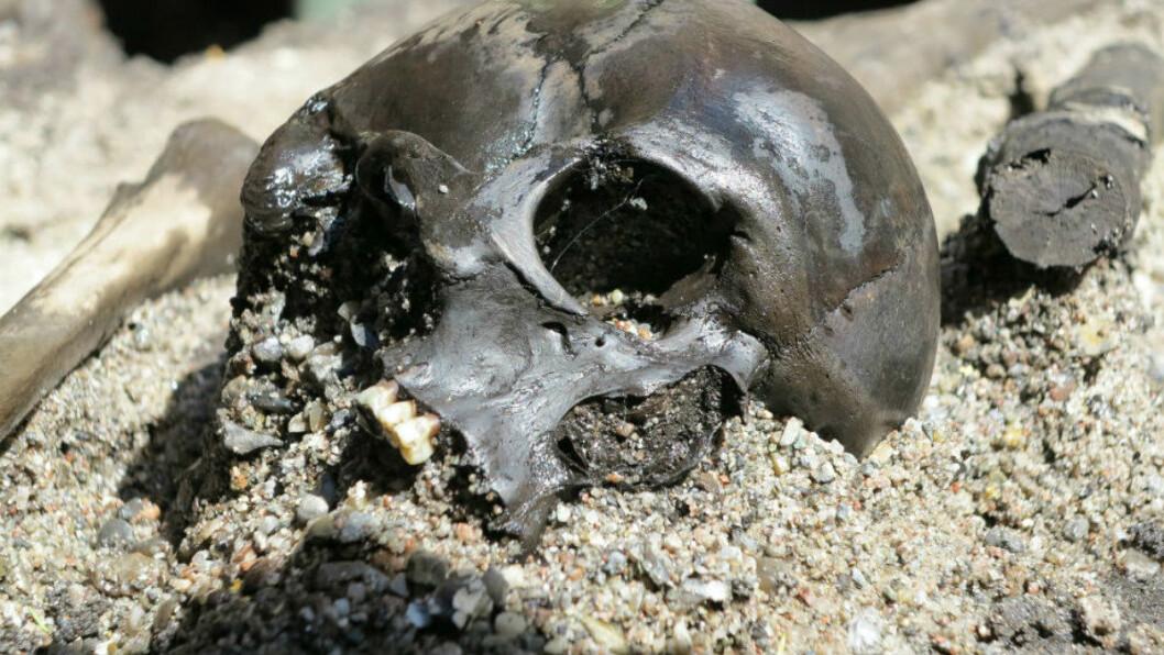 Beinrester fra flere hundre krigere er funnet ved utgravingsstedet. Her er en av hodeskallene som er funnet. (Foto: Peter Jensen,  Aarhus universitet)