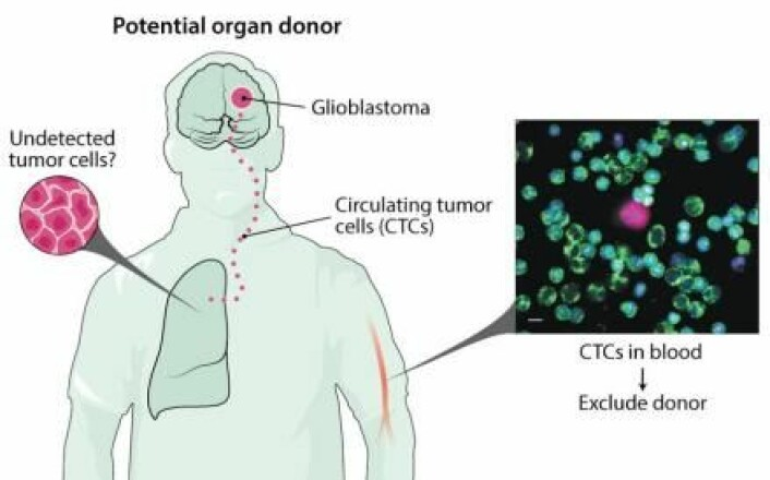 En kreftsvulst i hjernen kan sende ut kreftceller i organer som blir gitt videre til en donor. En internasjonal forskergruppe foreslår derfor at donorer blir testet for hjernekrefttypen GBM. (Illustrasjon: Science)