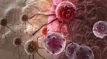 Hjernekreftceller fra organdonorer kan spre seg til mottakeren