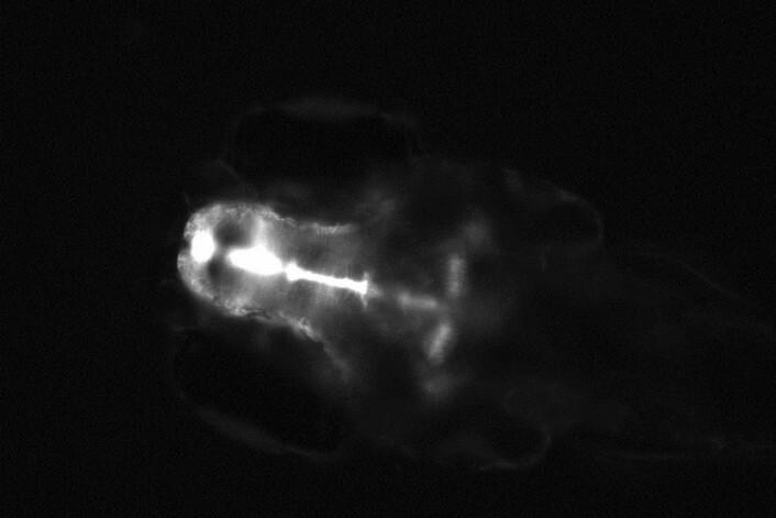 Sebrafiskembryo eksponert for østrogen med et høyt nivå av GFP i hjernen (hvit farge). (Foto: UFZ, Karina Petersen)