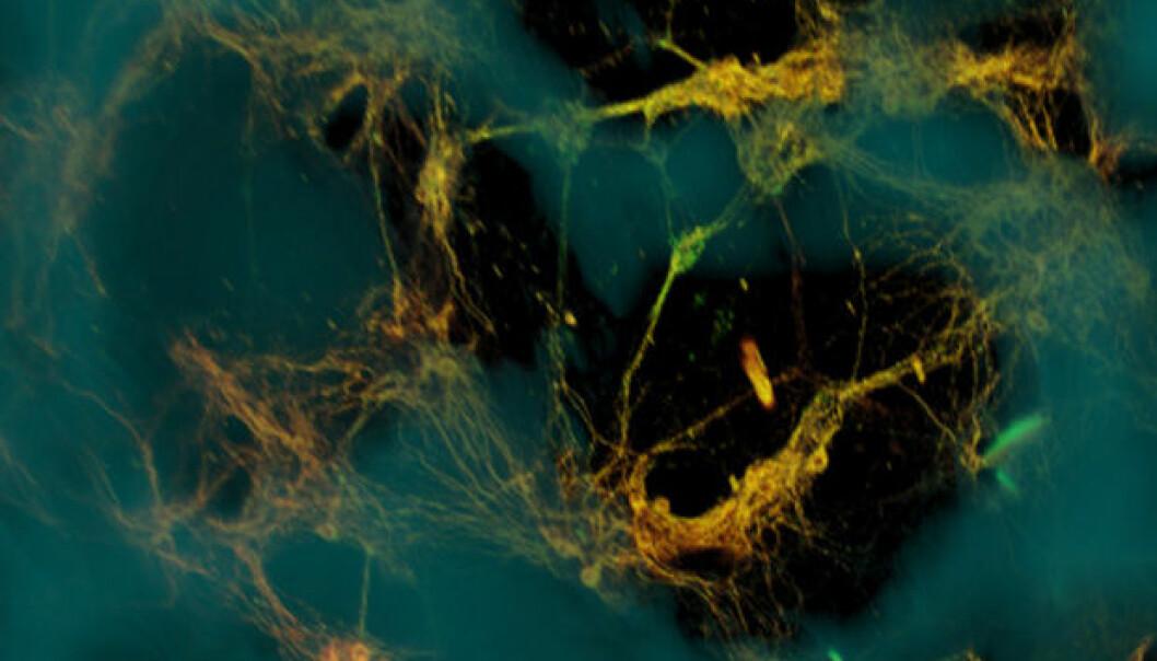 Mikroskopi av hjerneceller (grønngule) festet til et rammeverk av porøs silke (blå). Hjernecellene dannet funksjonelle nettverk gjennom porene i rammeverket (mørke områder). Tufts University