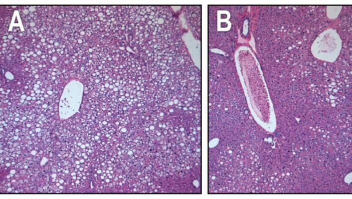 I levervevet hos mus med diabetes type 2 er fettfylte celler hvite (se bilde A.). Etter injeksjonen av FGF1-proteinet begynte cellene å kunne absorbere sukker fra blodet igjen (se bilde B). Dermed begynte de å ligne friske celler. (FOTO: SALK INSTITUTE FOR BIOLOGICAL STUDIES)