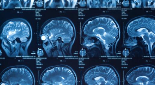 Test av smart medisin mot hjernekreft