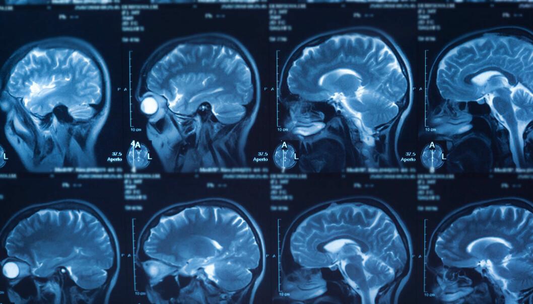 – For å ta kreftbehandlingen videre er det viktig å kombinere flere fagfelt, slik som fysikk, biologi og kreftmedisin, sier forsker Eirik Malinen. (Illustrasjon: Colourbox)