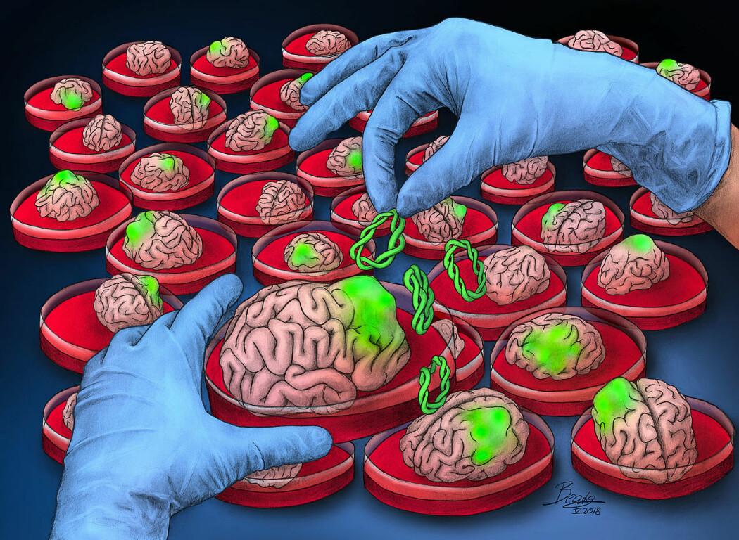 Ved å dyrke små hjerner på laboratoriet kan forskere teste ut nye behandlinger for hjernesykdom. Her er en kunstners tolkning av det å gro hjernekreft i en skål. I virkeligheten er dagens dyrkede minihjerner langt mindre, bare noen få millimeter, og ser annerledes ut. (Illustrasjon: BeataScienceArt/ IMBA).