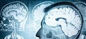 Kunstig intelligens gir mer kunnskap om hjernesykdommer