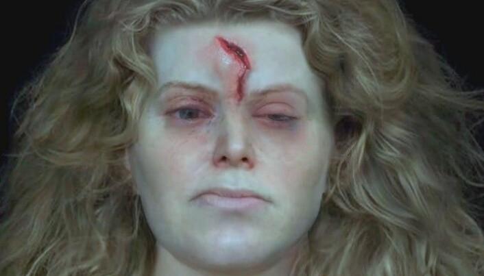 Damen hadde fått seg en skikkelig smell i ansiktet før hun døde. Kan det ha vært en krigsskade? (Bilde: National Geographic)