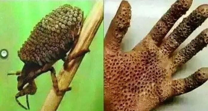 Et eksempel på fake news fra en post som gikk verden rundt på sosiale medier for et par år siden. Nei, insektet til venstre gir deg ikke virusinfeksjon. Nei, hånda di blir ikke slik om du tar på et insekt.