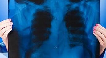 Lungekreftvaksine gir håp