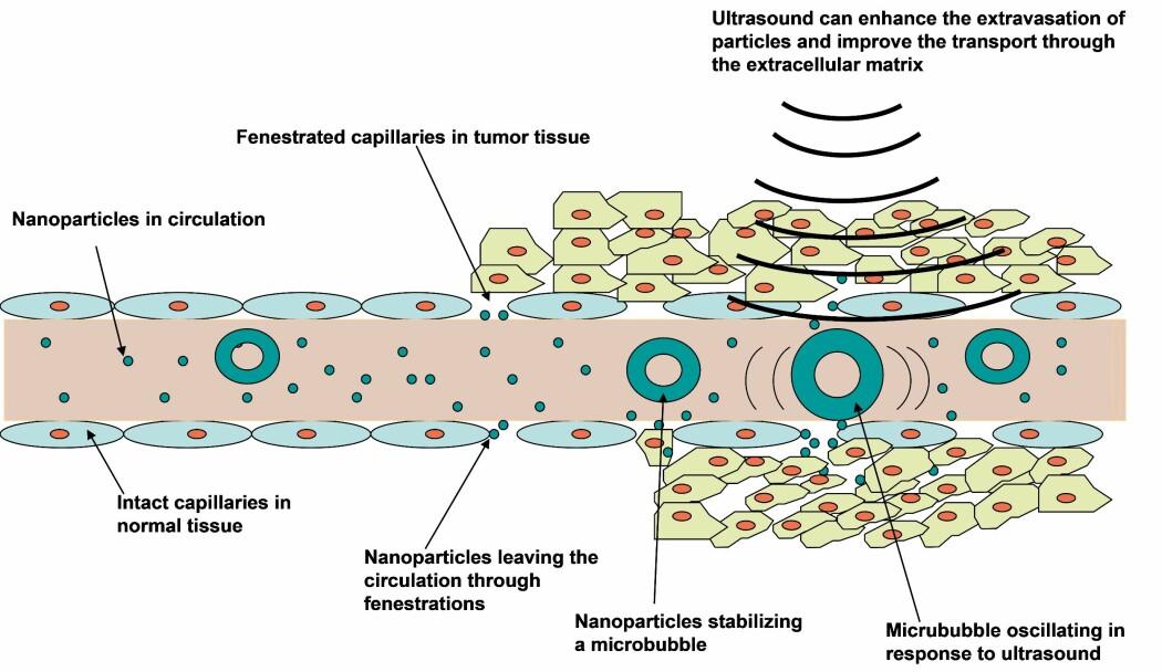 En blodåre med endotelceller(med røde kjerner) i blodåreveggen tett inntil hverandre i det friske vevet til venstre, og åpninger mellom endotelcellene i blodåren i svulsten til høyre. Ultralyd rettet mot svulsten øker transporten av nanopartikler (i grønt) over blodåreveggen og nanopartiklene tas opp i celler.