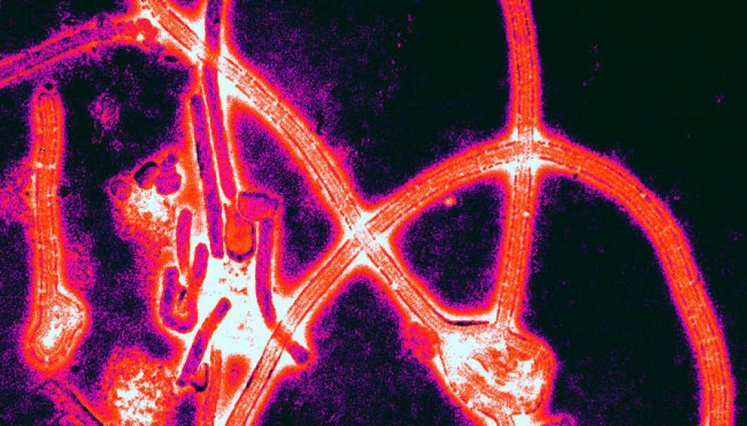 Ebola skremte vannet av oss på 1990-tallet, men hvor ble den av? (Illustrasjon: Thomas W. Geisbert, Boston University School of Medicine/Wikimedia Commons)