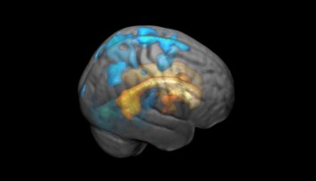 The effects of the white spots increase in volume as they spread across the surface of the brain. Here marked in blue