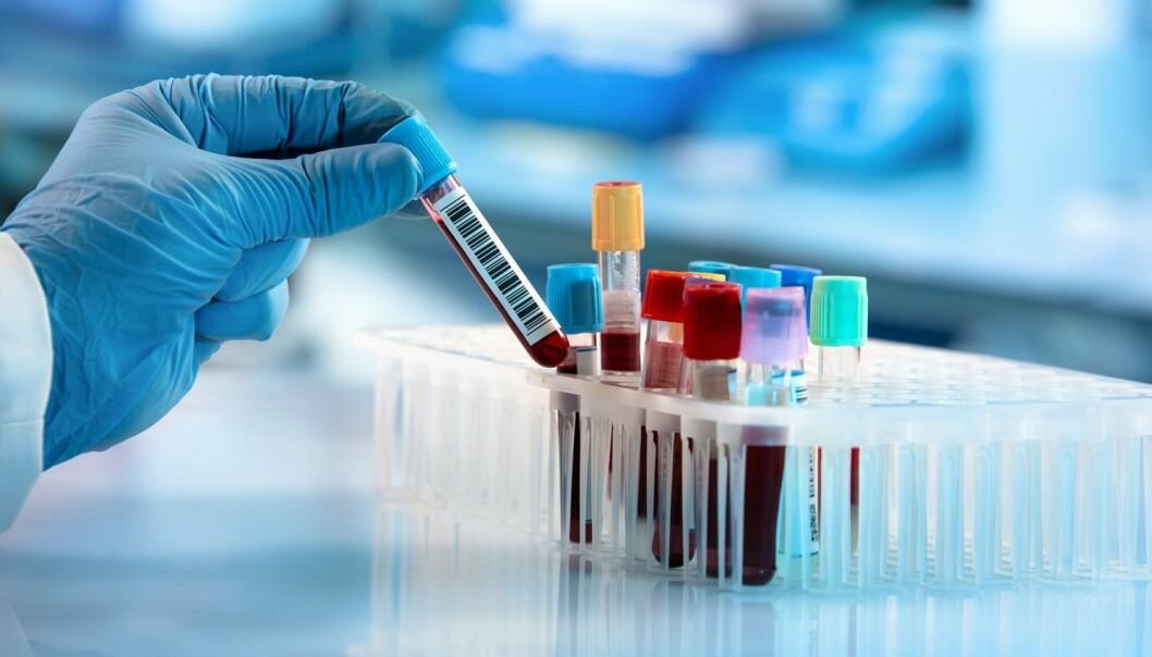 Tidligere diagnostisering og treffsikker identifisering av risiko er det helsevesenet drømmer om, sier forsker bak studien.
