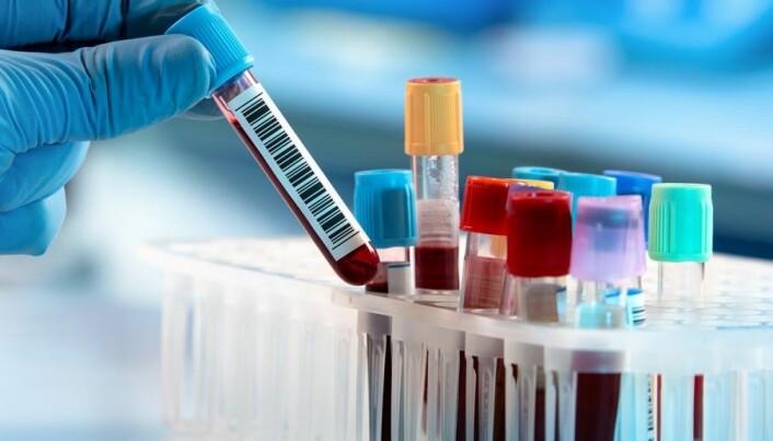Proteiner i blodprøve kan avsløre og forutsi sykdom