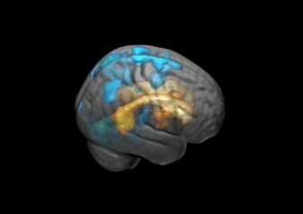 Påvirkningen fra de hvite flekkene sprer seg utover til hjernens overflate med økende volum. Her markert med blått.