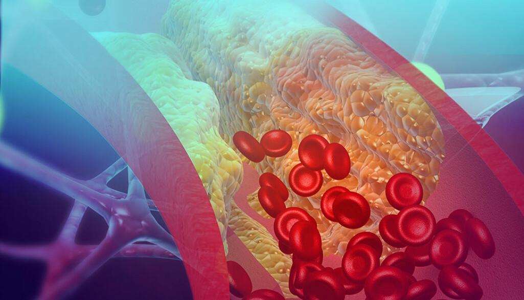 I plakk som tetter blodårene finnes det noe som heter kolesterolkrystaller. Dette dannes gjennom opphopning av dårlig kolesterol i blodkarveggene. En studie viser at kolesterolkrystaller kan få blodet til å klumpe seg gjennom å aktivere immunforsvaret.