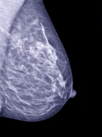 Mammogram. (Foto: iStockphoto)