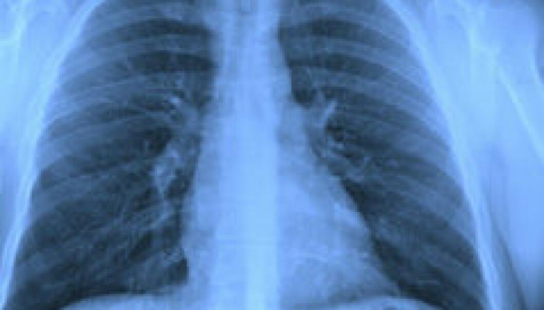 Tuberkulose er på frammarsj igjen. Sykdommen synes på røntgenbilder. Shutterstock