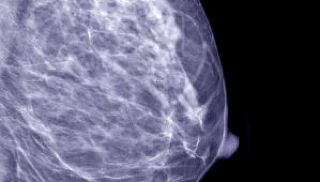 Mammogram. Istockphoto