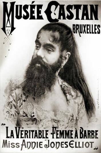 På 1800-tallet ble annerledeshet iscenesatt på freakshow og sirkus. For eksempel kunne man se damer med skjegg. (Illustrasjonsfoto: Wikimedia Commons)