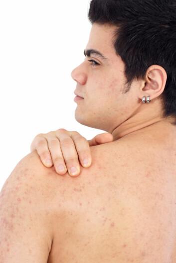 En genfeil som er kjent for å gi knusktørr hud og eksem, kan kanskje være en fordel. Folk med mutasjonen har mer D-vitamin i blodet. (Foto: iStockphoto)