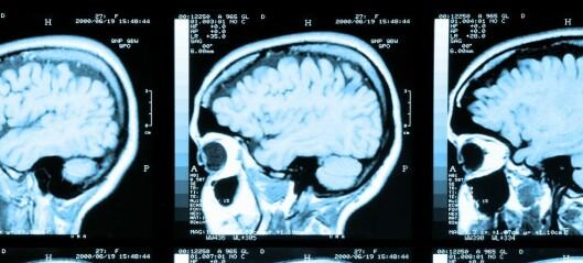 Er det sant at vi bare bruker en liten del av hjernen?