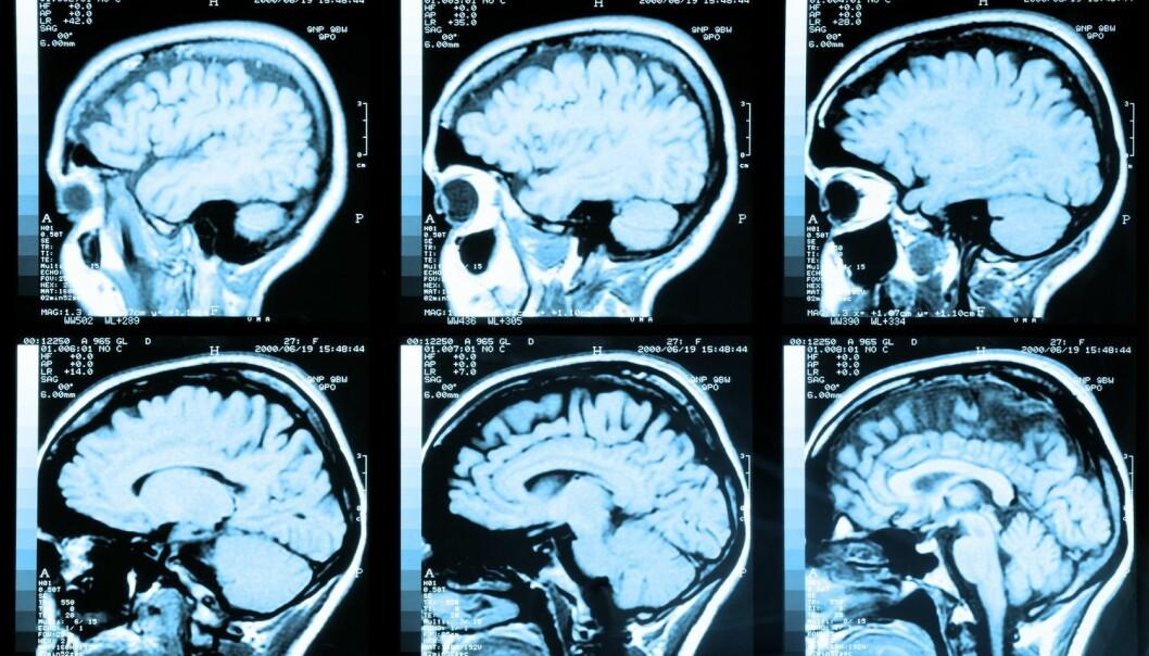 Vi bruker hele hjernen, sier forskerne.