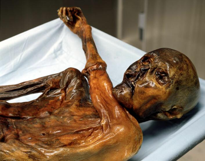 """""""Til å være 5300 år gammelt, er liket av Ötzi fantastisk godt bevart. Ifølge den nye studien kan ingen nålevende hevde å være i direkte slekt med ismannen. (Foto: South Tyrol Museum of Archaeology - www.iceman.it)"""