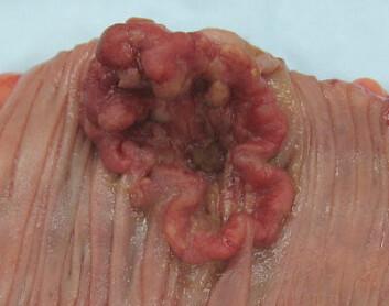Kreftsvulst i tykktarm (Foto: Emmanuelm, Wikimedia Commons, se lisens)