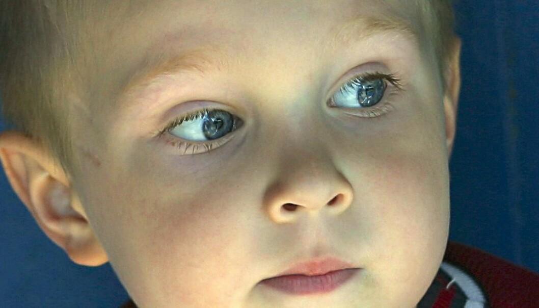 Er du også litt klønete? Strever du eller barnet ditt med å lese, skrive eller regne? Kanskje er synet den egentlige årsaken.