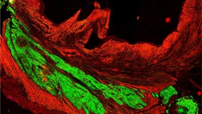 Stamceller kan ifølge forskere bli fremtidens behandlingsmiddel for forskjellige hjertesykdommer. På bildet ser du hvordan hjerteceller fra mennesker (grønt) har blitt til muskelvev i hjertet hos en ape. (Foto: Murry Lab/University of Washington)