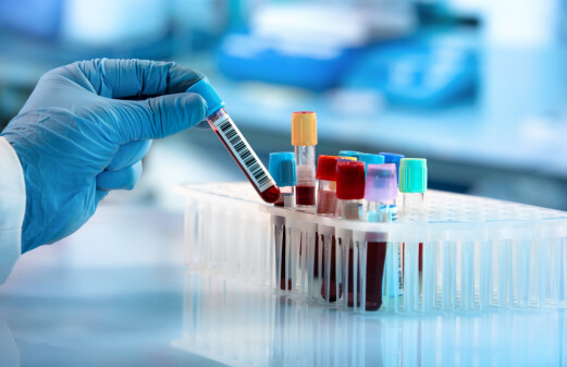 Proteins in blood test can reveal and predict disease