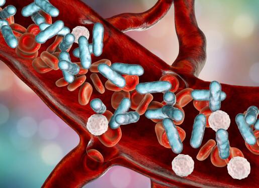 Vitamin C og sepsis: Det trengs mer forskning