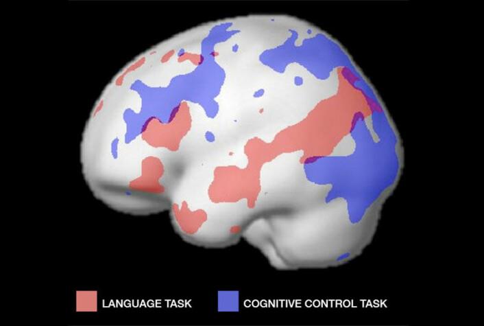 Fra en tidligere kortnytt-melding hos forskning.no: De røde områdene viser aktive områder ved språkbruk, og de blå viser aktive ormåder ved en annen sammenlignende tankevirksomhet, for kontroll. (Foto: (Figur: Fedorenko et al, MIT))