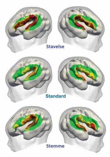 Bildene viser de forskjellige reaksjonsmønstrene i hjernen. De midterste bildene viser grunnopptaket, mens de øverste viser reaksjonen da ba ble endret til ga eller motsatt. Nederste viser reaksjonen da stemmen forandret seg. (Foto: Fabrice Wallois)