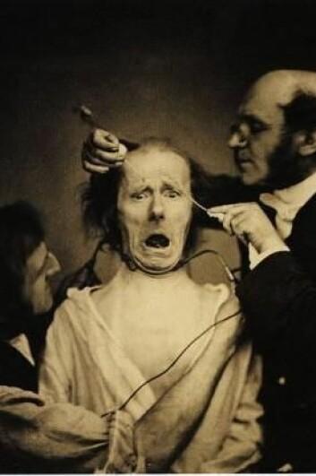 Guillaume Duchenne de Boulogne (1806–1875) var en fransk nevrolog som undersøkte følelsenes fysiologi i det store verket «Mécanisme de la physionomie humaine», som blant annet inspirerte Darwin. Ved hjelp av små støt utløste han ansiktsuttrykk, som ble fotografert. Her er han i ferd å sette strøm i yndlingsmodellen sin. (Foto: Duchenne de Boulogne/Wikimedia Commons)