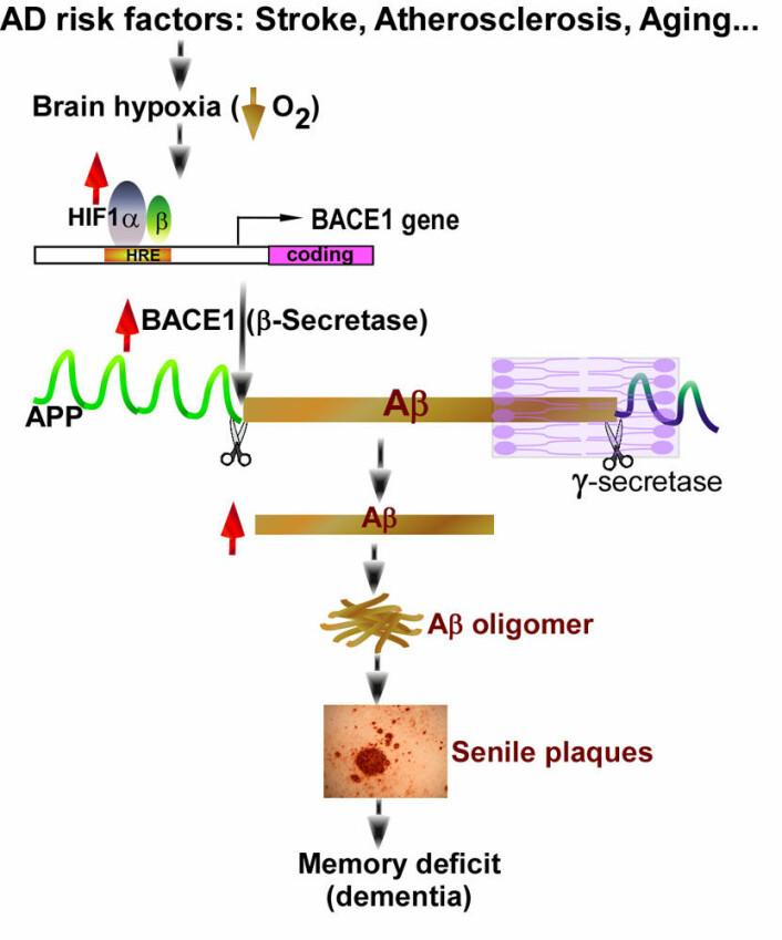 """""""Dette er forskernes egen skjematiske fremstilling av hvordan mangel på oksygen i hjernen kan bidra til Alzheimers sykdom."""""""