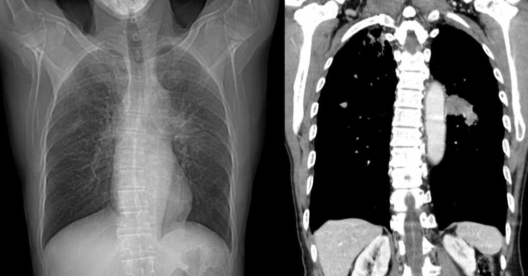 Bildet viser CT-scanning som viser lungekreft. CT er tverrsnitt-fotografering av et utvalgt område av kroppen med røntgenstråler.