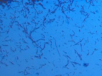 """Desse mikrobane ser ut til å ha det som """"plomma i egget"""" i vasskanalane i bestemte oljefelt. (Foto: Kate Boccadoro, IRIS)"""