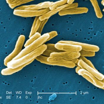 Mycobacterium tuberculosis. (Foto: Janice Haney Carr)