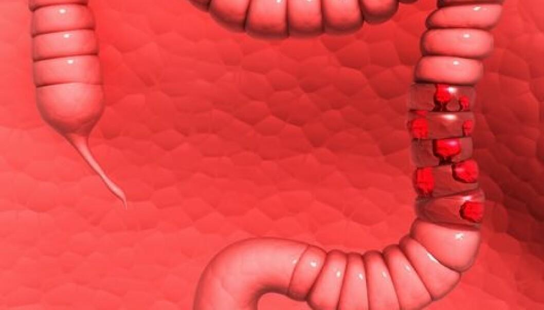 Illustrasjon av tarmkreft. Colourbox