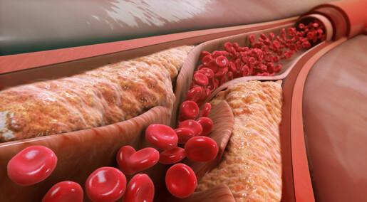 Blodpropp-enzym kan vere del av kroppen sitt forsvarssystem
