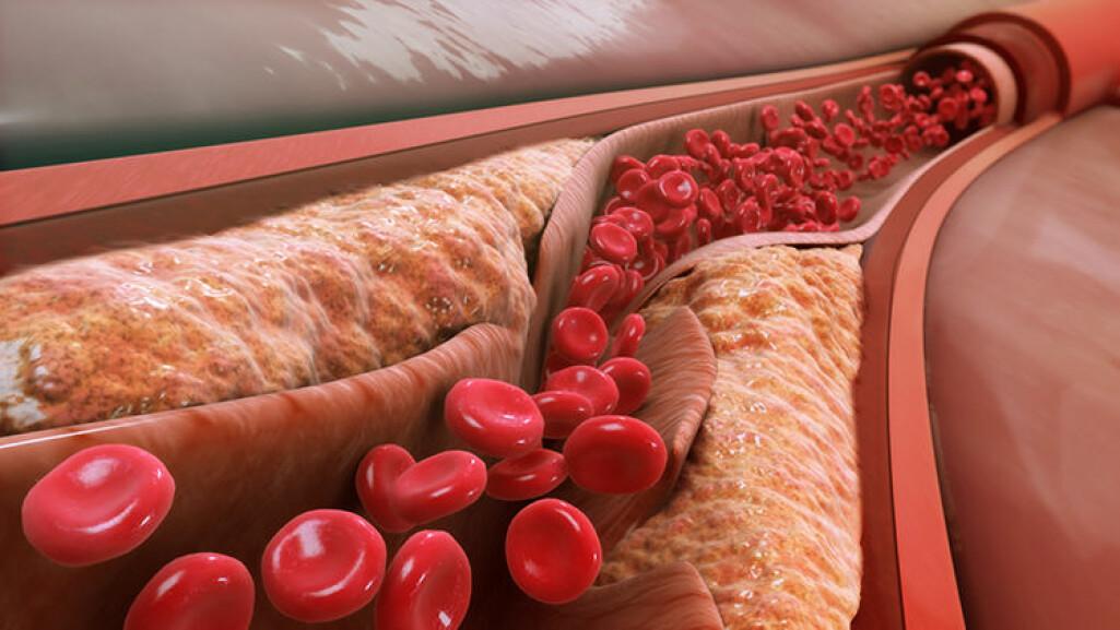 Plakk som byggjer seg opp langs åreveggane, kan føra til blodpropp om det sprekk eller losnar.