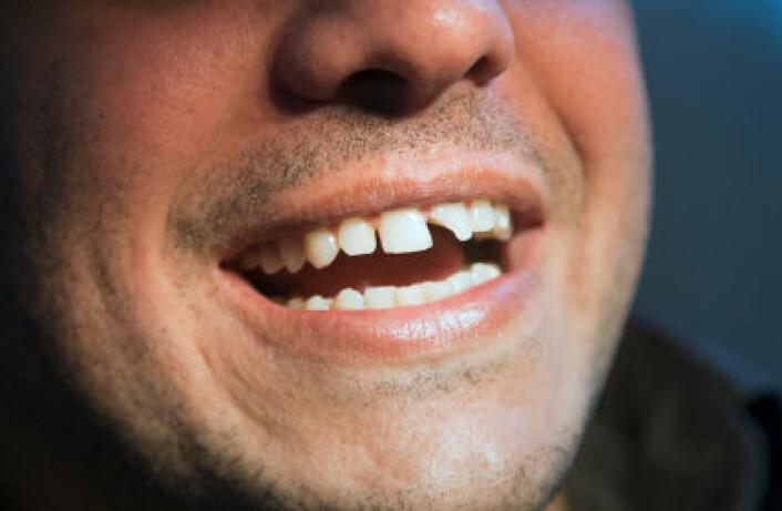 Levekårundersøkinga syner blant anna at det særleg er dei med dårleg eigenvurdert tannhelse som har eit udekt tannlegebehov. (Foto: iStockphoto)