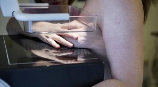 Kvinner får for dårlig informasjon om mammografi, ifølge ny studie