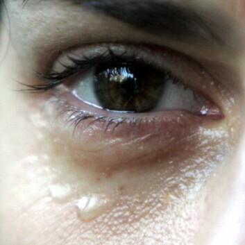 Sosial og fysisk smerte overlapper hverandre i hjernen. (Foto: Colourbox)