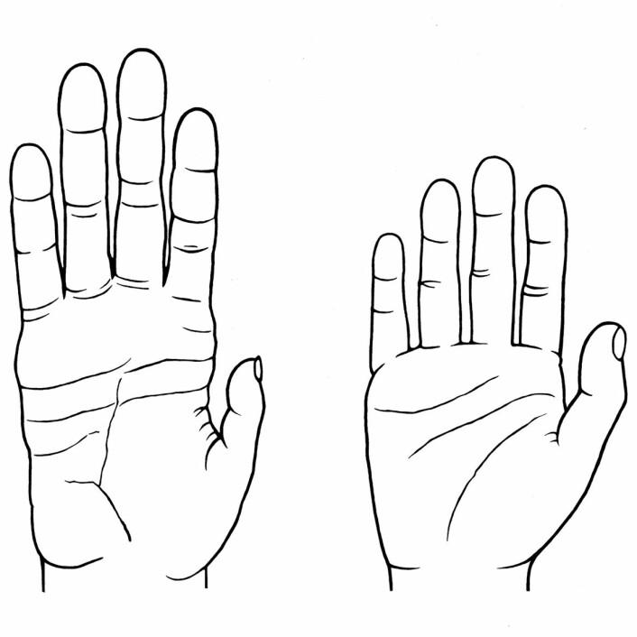 Sammenlignet med hånden til en sjimpanse (til venstre) er menneskets hånd utstyrt med kortere fingre og flate, men med en lengre, sterkere og mer fleksibel tommel. Dette betyr ikke bare at vi kan benytte verktøy og andre ting med stor presisjon, men også at vi kan knytte neven hardt sammen, noe aper ikke kan. (Foto: (Illustrasjon: Denise Morgan, University of Utah))