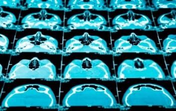 Nye metoder må til for å bedre utsiktene for pasienter med hjernekreft. (Illustrasjonsfoto: www.colourbox.no)