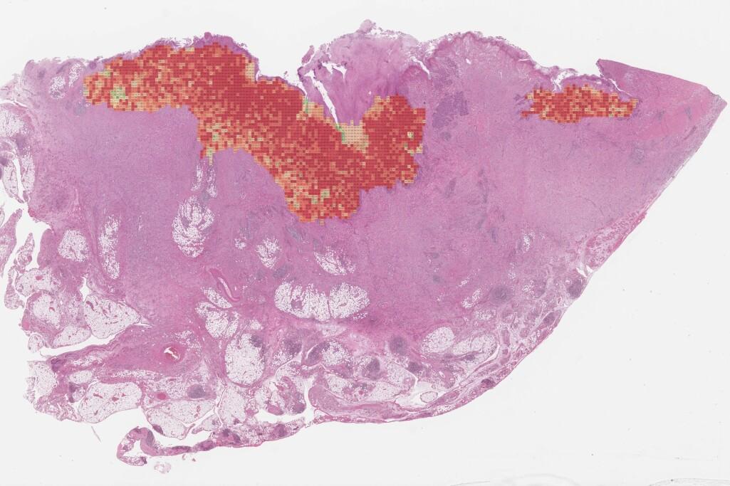 Fra tusenvis av bilder trekker en kunstig intelligens konklusjoner om prognosen til hver enkelt kreftsvulst.